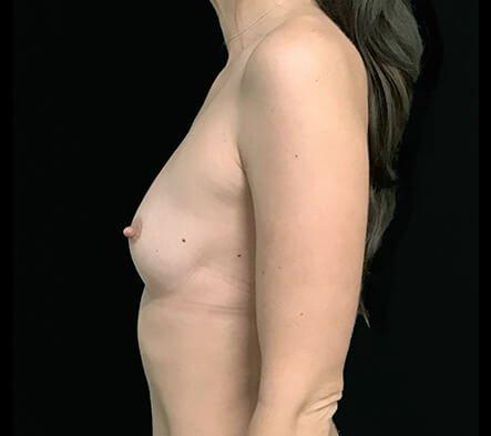 Breast Augmentation Results Brisbane Surgeons 400cc Motiva Ergonomix Implants MM 5
