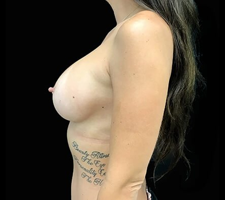 Breast Augmentation Results Brisbane Surgeons 400cc Motiva Ergonomix Implants MM 6