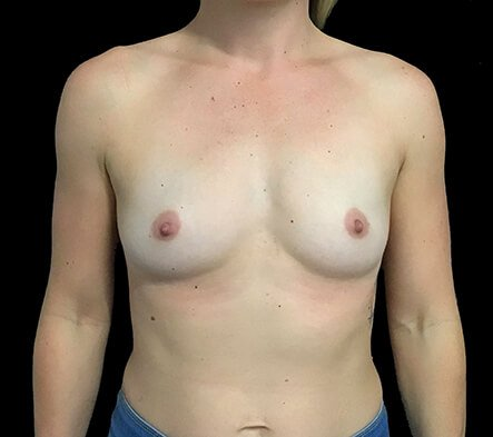 Breast Augmentation Surgeon Brisbane 330cc Anatomical Moderate Plus Profile Implants ZM 1