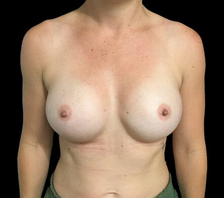 Breast Augmentation Surgeon Brisbane 330cc Anatomical Moderate Plus Profile Implants ZM 2