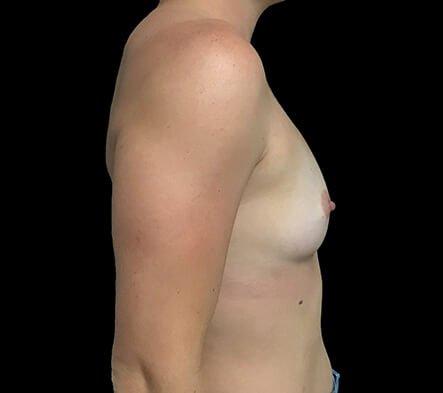 Breast Augmentation Surgeon Brisbane 330cc Anatomical Moderate Plus Profile Implants ZM 3