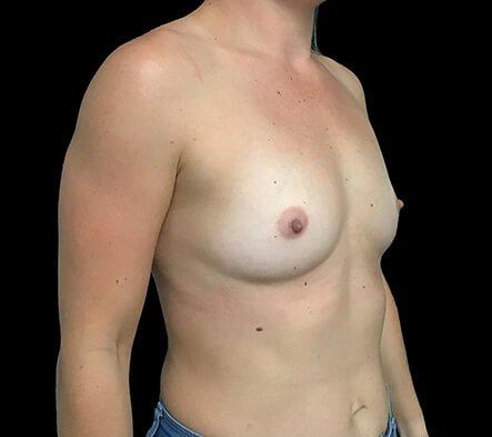 Breast Augmentation Surgeon Brisbane 330cc Anatomical Moderate Plus Profile Implants ZM 5