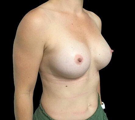 Breast Augmentation Surgeon Brisbane 330cc Anatomical Moderate Plus Profile Implants ZM 6
