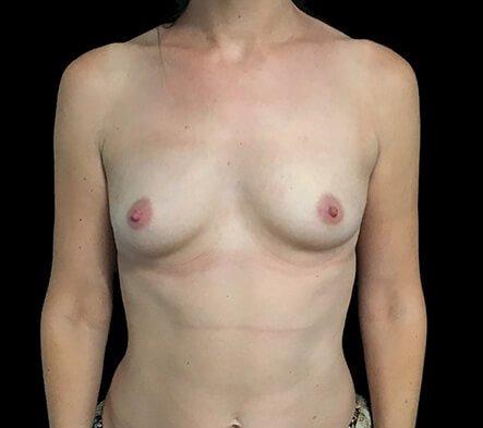 Breast Augmentation Surgeon Dr David Sharp Brisbane LF1 Copy