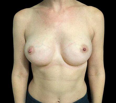 Breast Augmentation Surgeon Dr David Sharp Brisbane LF2