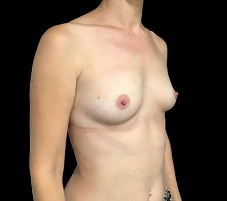 Breast Augmentation Surgeon Dr David Sharp Brisbane LF5