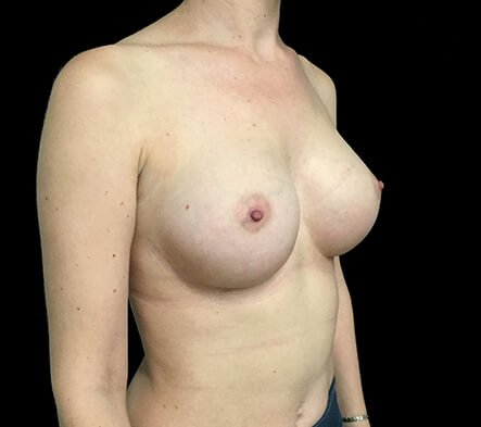 Breast Augmentation Surgeon Dr David Sharp Brisbane LF5b