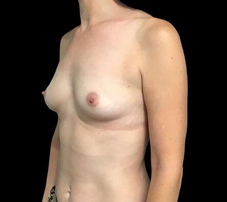 Breast Augmentation Surgeon Dr David Sharp Brisbane LF7