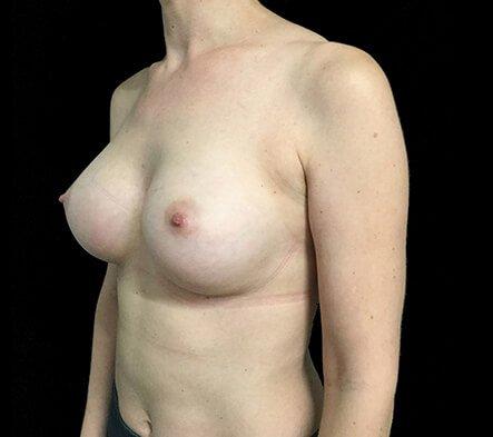 Breast Augmentation Surgeon Dr David Sharp Brisbane LF8