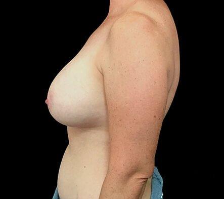 Breast Augmentation Surgery BT 2 After