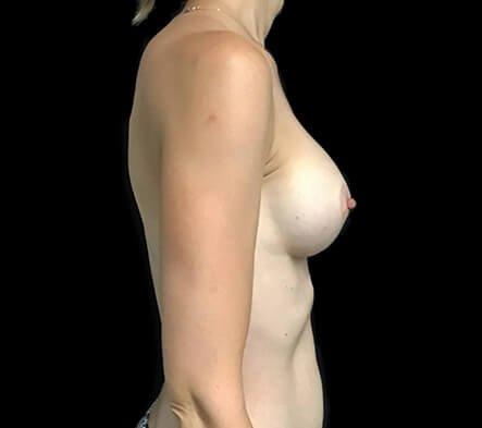 Breast Implants 355 Motiva Ergo Full Projection AB6