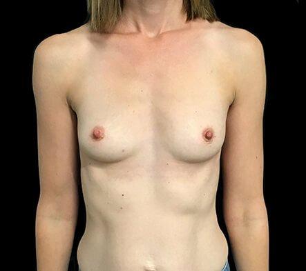 Breast Implants 355 Motiva Ergo Full Projection AB 1