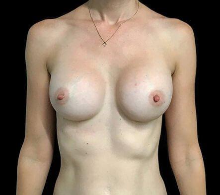 Breast Implants 355 Motiva Ergo Full Projection AB 2