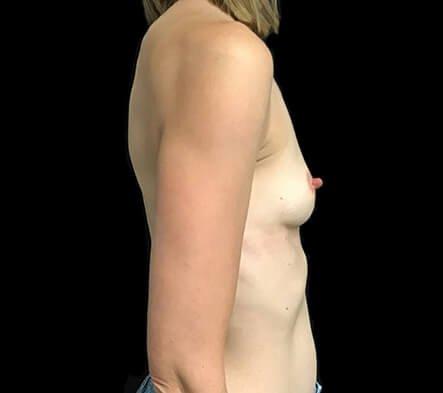 Breast Implants Before Side 355 Motiva Ergo Full Projection AB5