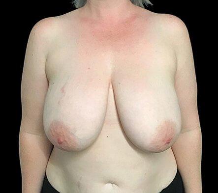 Breast Reduction Dr Sharp Brisbane ET 1