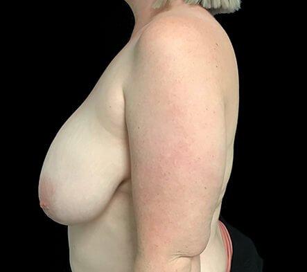 Breast Reduction Dr Sharp Brisbane ET 2