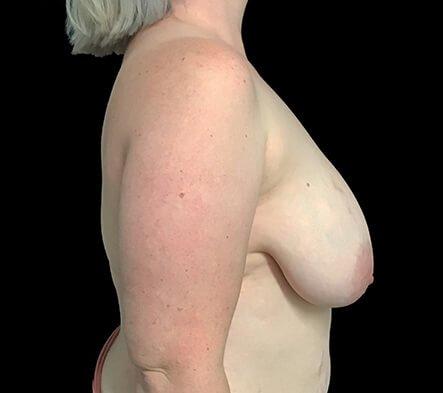 Breast Reduction Dr Sharp Brisbane ET 3