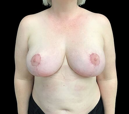 Breast Reduction Dr Sharp Brisbane ET 4