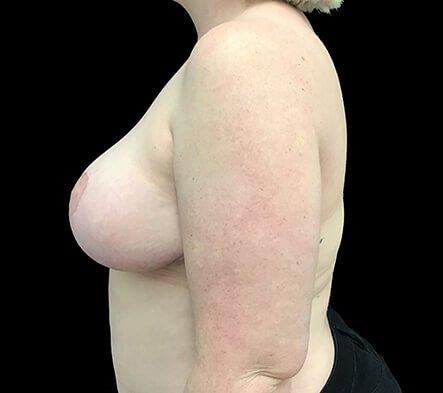 Breast Reduction Dr Sharp Brisbane ET 5