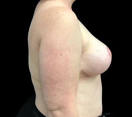 Breast Reduction Dr Sharp Brisbane ET 6
