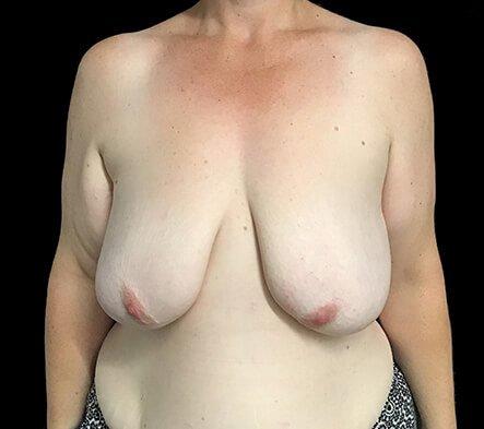 Breast Reduction Brisbane Surgeon BB1