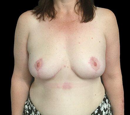 Breast Reduction Brisbane Surgeon BB2