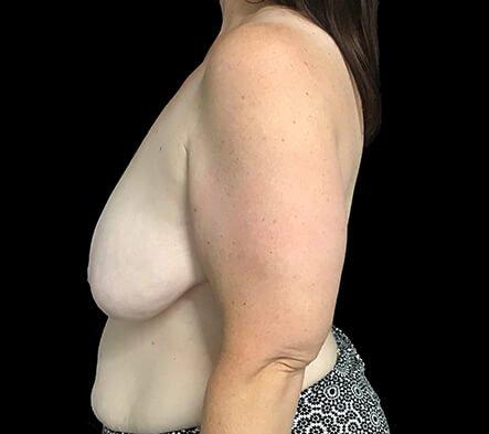 Breast Reduction Brisbane Surgeon BB3