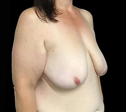 Breast Reduction Brisbane Surgeon BB5