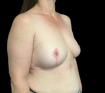 Breast Reduction Brisbane Surgeon BB6