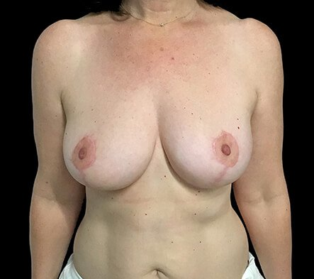 Breast Reduction Surgeon Brisbane And Ipswich Dr David Sharp KC2