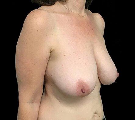 Breast Reduction Surgeon Brisbane And Ipswich Dr David Sharp KC3