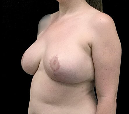 Breast Reduction Surgeon LKY After