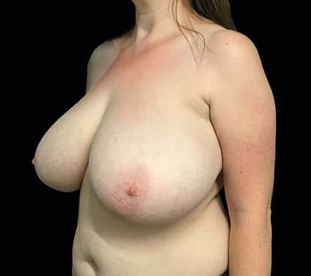 Breast Reduction Surgeon LKY Before