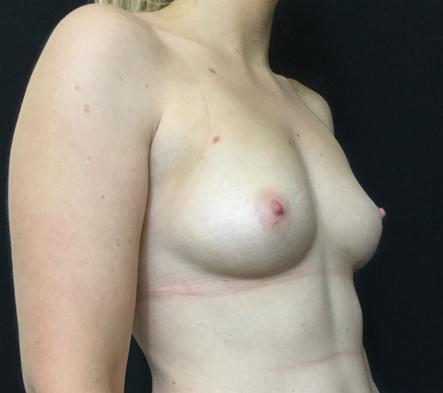 Brisbane-boob-job-before