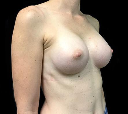 Brisbane-breast-augmentation-clinic-surgeon-Dr-David-Sharp-after-BN