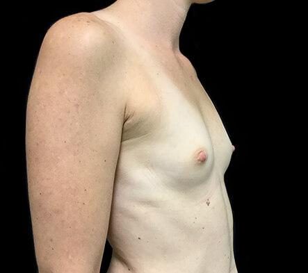 Brisbane-breast-augmentation-clinic-surgeon-Dr-David-Sharp-before-BN