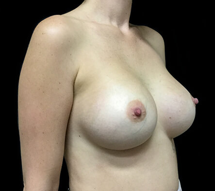 Brisbane-breast-augmentation-surgeon-1-1