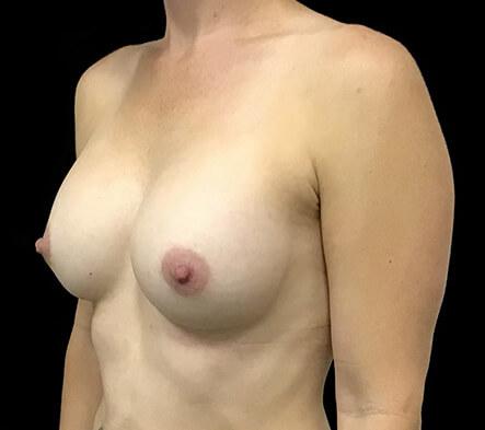 Brisbane-breast-augmentation-surgeon-Dr-David-Sharp-Brisbane-and-Ipswich-