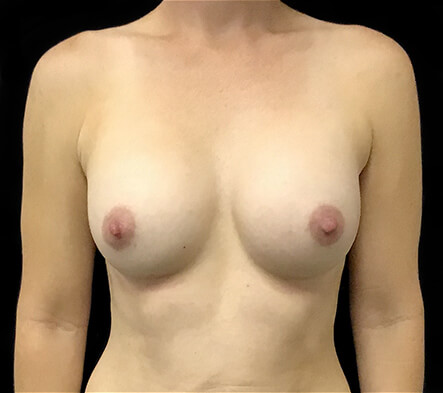 Brisbane-breast-augmentation-surgeon-Dr-David-Sharp-Brisbane-and-Ipswich-1-2