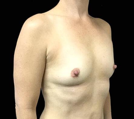 Brisbane-breast-augmentation-surgeon-Dr-David-Sharp-Brisbane-and-Ipswich-KC-