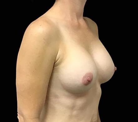 Brisbane-breast-augmentation-surgeon-Dr-David-Sharp-Brisbane-and-Ipswich-KC