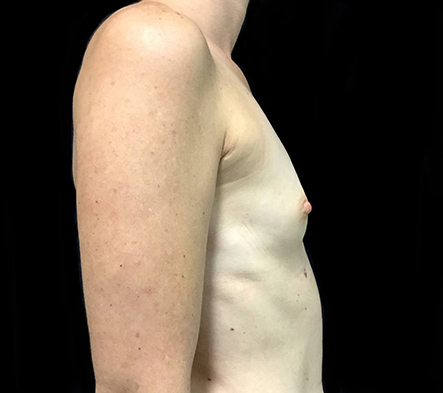 Brisbane-breast-augmentation-surgeon-Dr-David-Sharp-after-BN-1