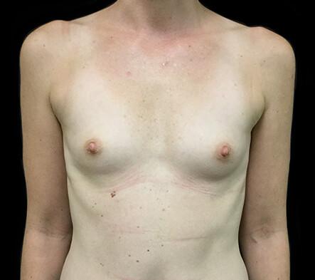 Brisbane-breast-augmentation-surgeon-Dr-David-Sharp-clinic-before-BN.-