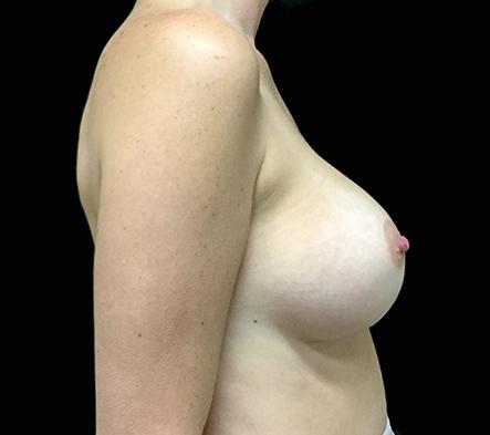 Brisbane-breast-augmentation-surgeon-KR-1