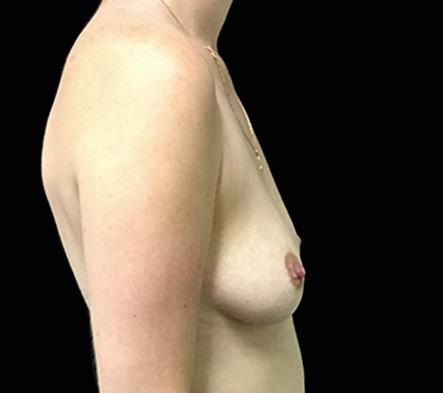 Brisbane-breast-augmentation-surgeon-KR