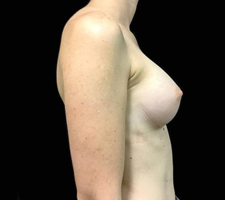 Brisbane-breast-augmentation-surgery-Dr-David-Sharp-after-BN-