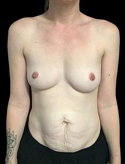Brisbane Abdominoplasty And Breast Augmentation Mummy Makeover Clinic SK 1