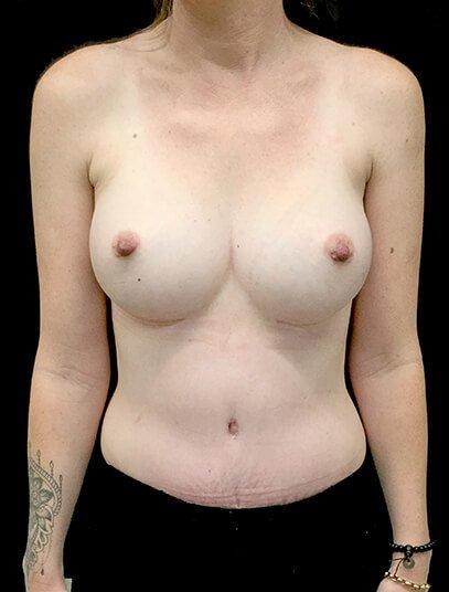 Brisbane Abdominoplasty And Breast Augmentation Mummy Makeover Clinic SK 2