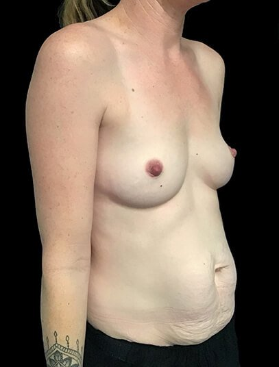 Brisbane Abdominoplasty And Breast Augmentation Mummy Makeover Clinic SK 3
