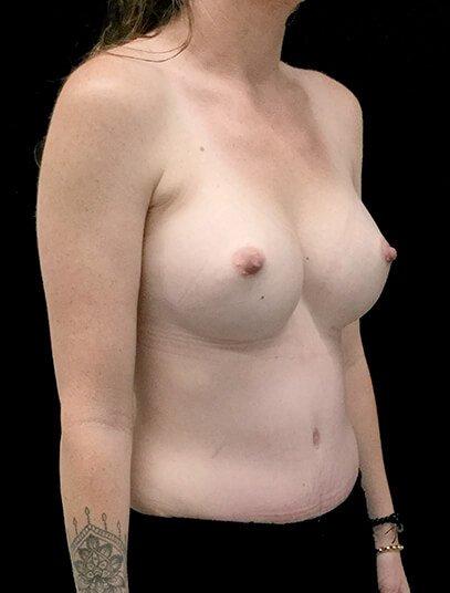 Brisbane Abdominoplasty And Breast Augmentation Mummy Makeover Clinic SK 4